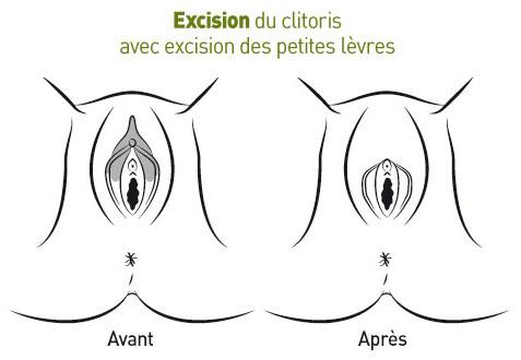 Clitoris excision pictures pics 102